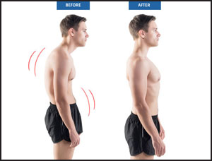 Before and after image of man with slumped over posture, then standing straight